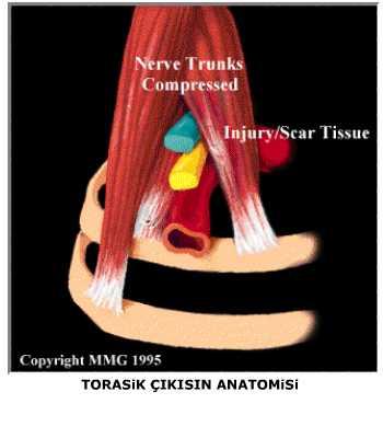 TORASIK SENDROMU OUTLET PDF